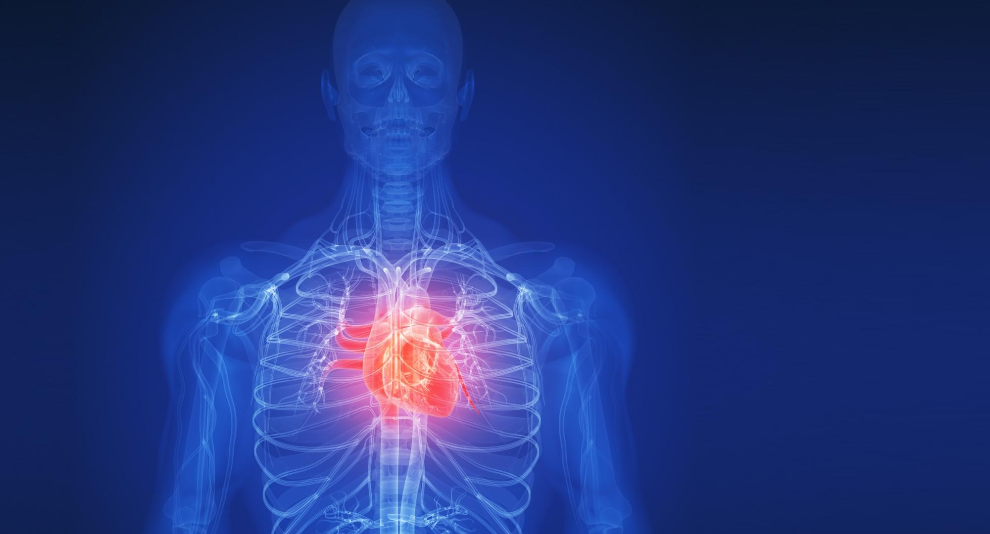 Wireframe illustration of the human body with the heart highlighted