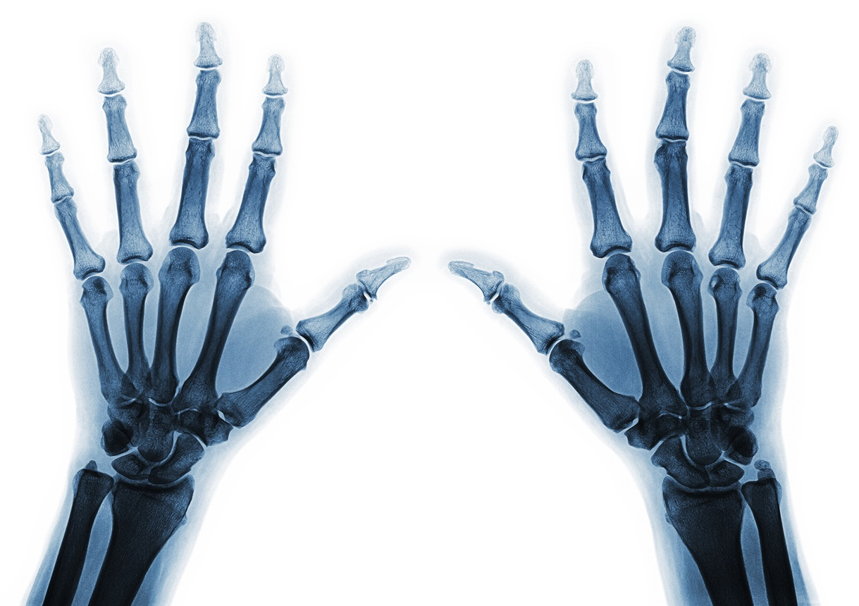 Focusing on hand injury prevention would ensure vital benefits for the public and the NHS